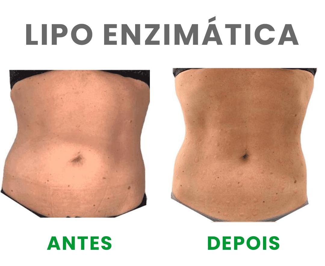 https://fcequilibrio.com.br/servicos/wp-content/uploads/2021/05/lipe-enzimatica-3.png
