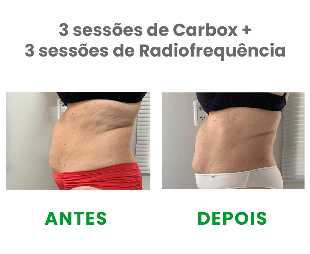 https://fcequilibrio.com.br/servicos/wp-content/uploads/2021/05/radiofrequencia-2.png