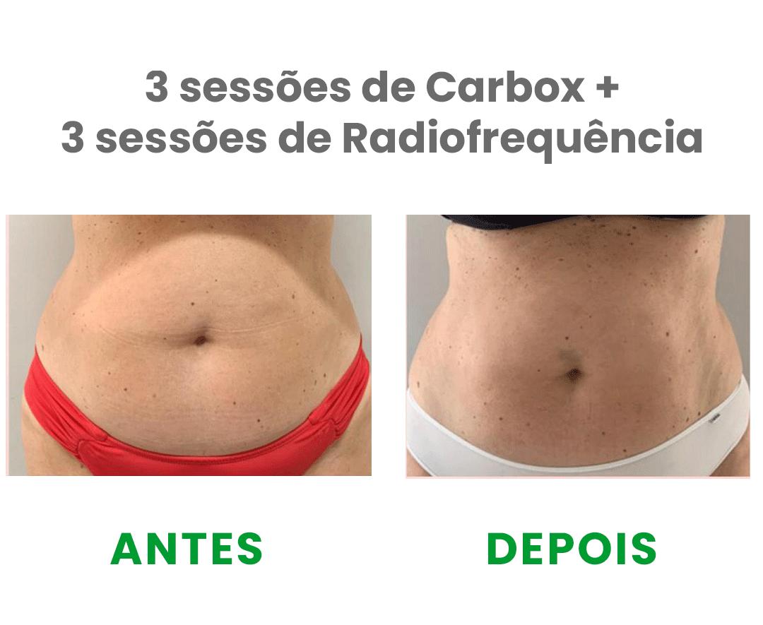 https://fcequilibrio.com.br/servicos/wp-content/uploads/2021/05/radiofrequencia-3.png